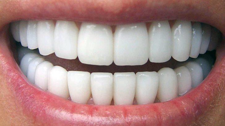 Porselen Diş Tedavisinde En Özel Yöntemler
