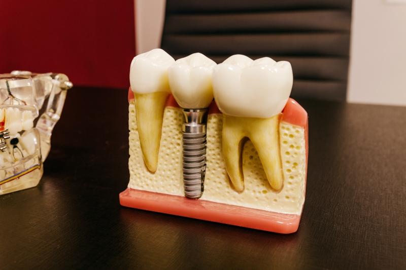 Ağız ve diş hastalıkları nelerdir?