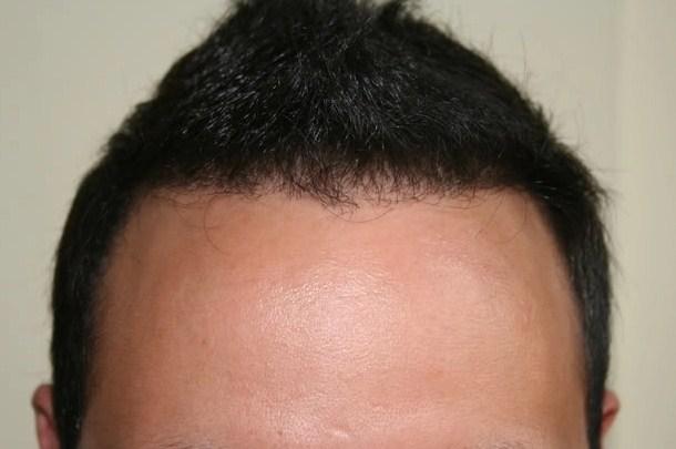 Doğal Saçlar İçin Saç Ekimi